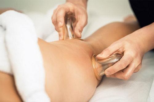 Баночный массаж от целлюлита, работает или нет?