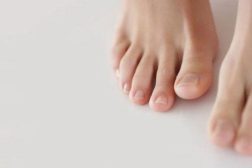 Желтеют ногти на ногах, причины